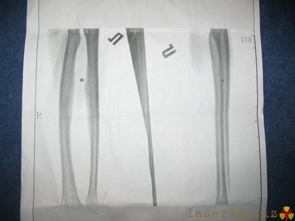 hardballtrauma3-pronikajushhee-ranenie.jpg